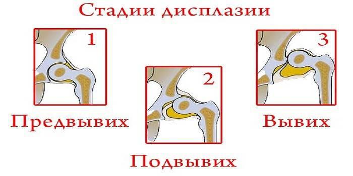 fizikoterápiás gyakorlatok a látószervek betegségeihez