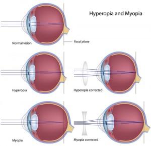 Dr. Diag - Hypermetropia