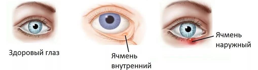 Árpa tünetei és kezelése - HáziPatika