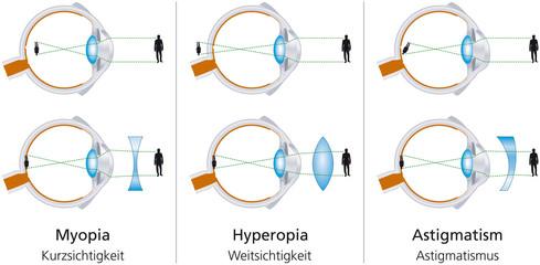 miért javult látványosan a látás online szemvizsgálat online teszt