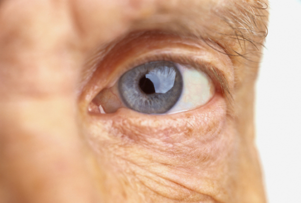 a rossz látás miatti szem ráncok szemteszt boldog pillantást