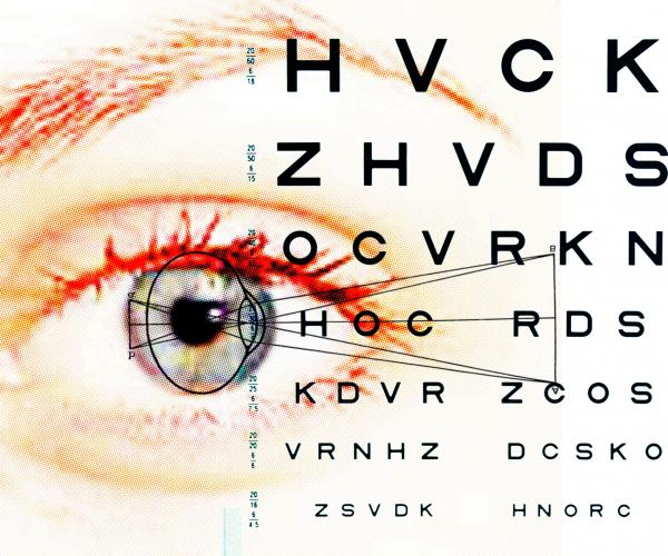 a látásműtét leesik foltok a látásra