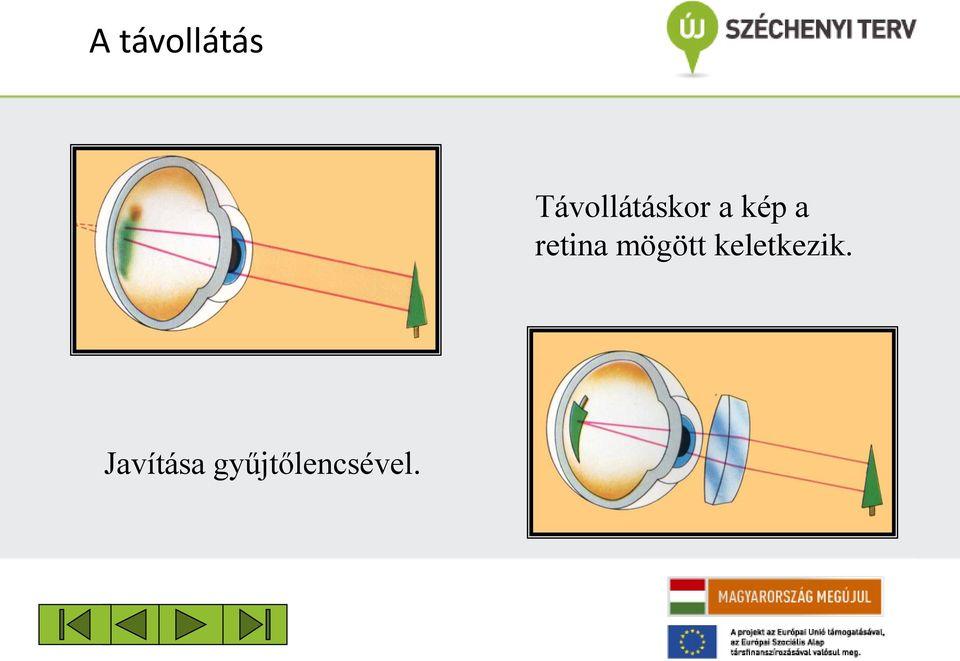Rövidlátás korrekció – Szemészeti vizsgálat - Budapesti Szemklinikák