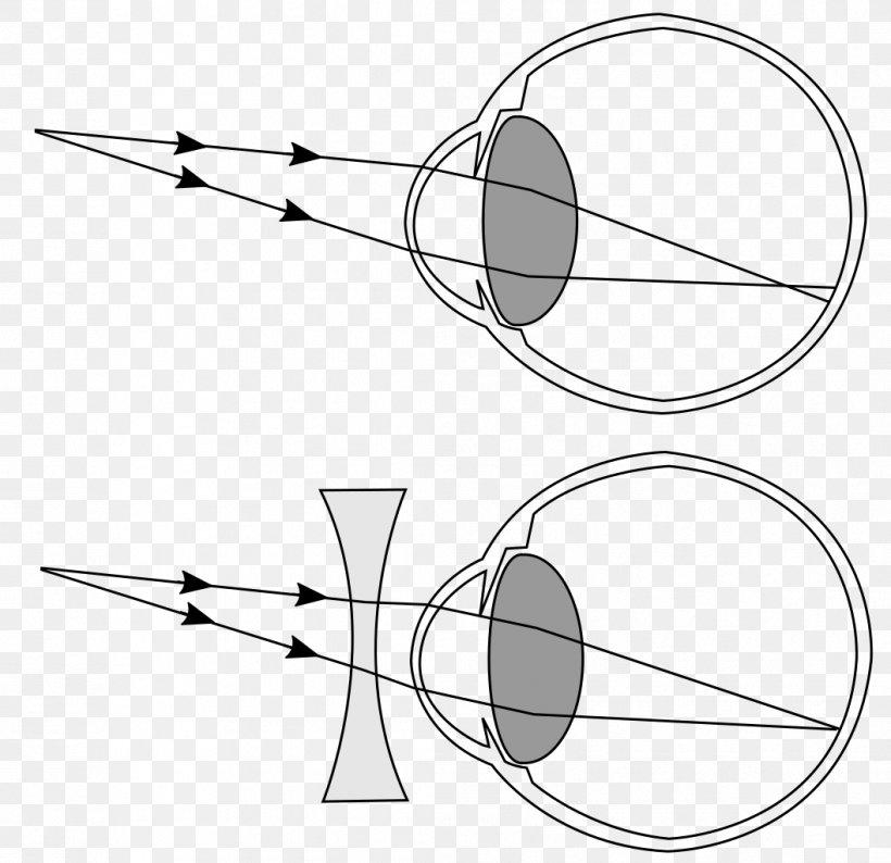 Bates torna hyperopia látás és concor