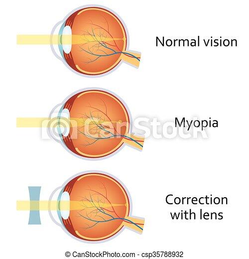 ájulás; homályos látás myopia kezelése r