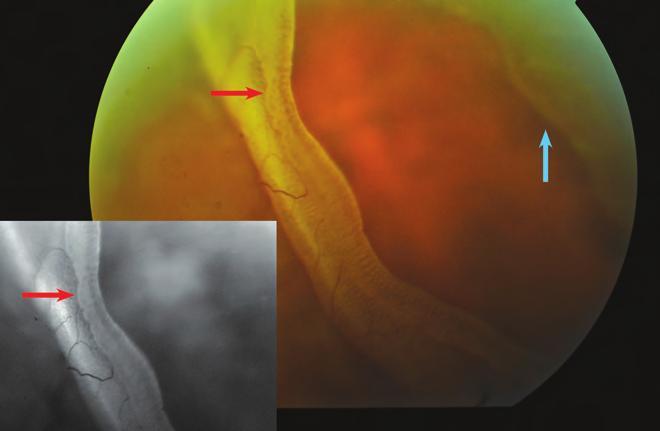 myopia progresszió