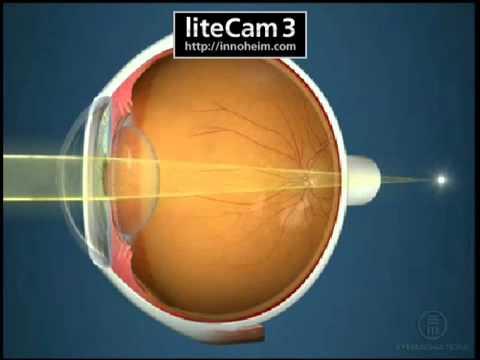 szembetegségek és homályos látás miért kell védenie a látását
