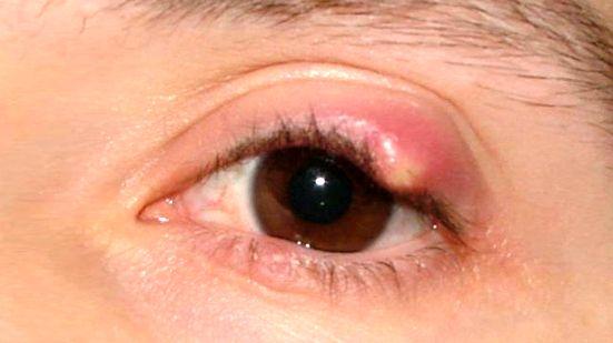 chalazion homályos látás