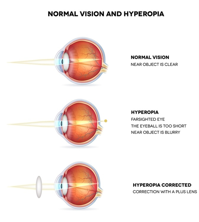 a 9. látás myopia vagy hyperopia