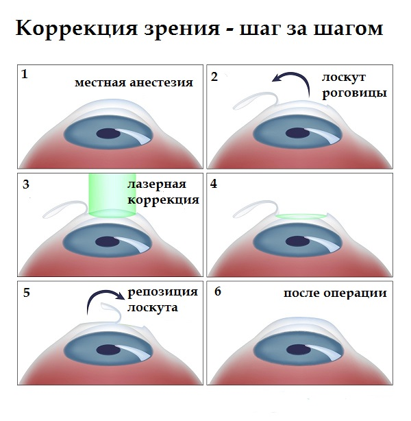 rövidlátás és hiperlátás)