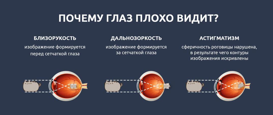 gyakorlatok a látáshoz, akik segítettek látvány helyreállítási tények
