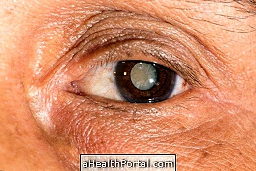 látási problémák időseknél