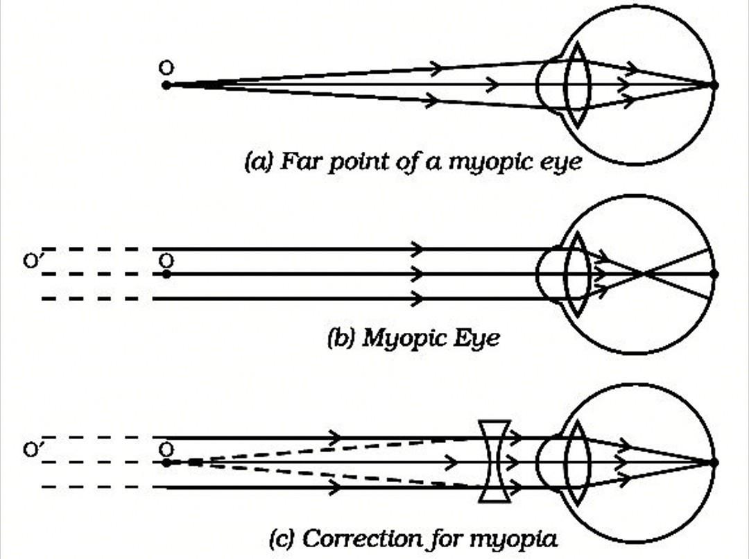 myopia és hyperopia különbség