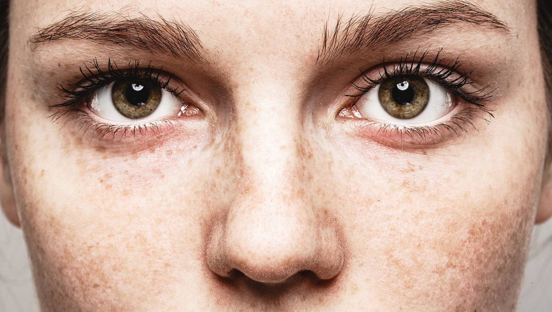 táplálkozás a látás helyreállítása érdekében áfonya vitaminok a látáshoz
