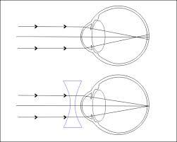 A látás rövidlátással csökken