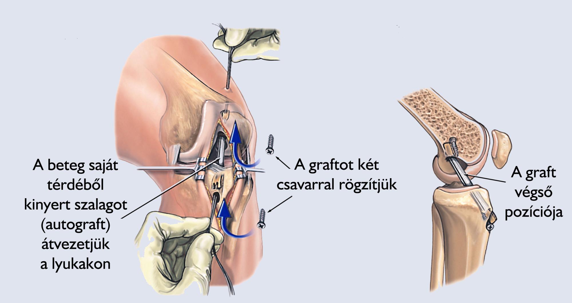 rekonstrukciós műtét rövidlátás miatt