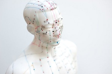 az akupunktúra gyógyítja a látást