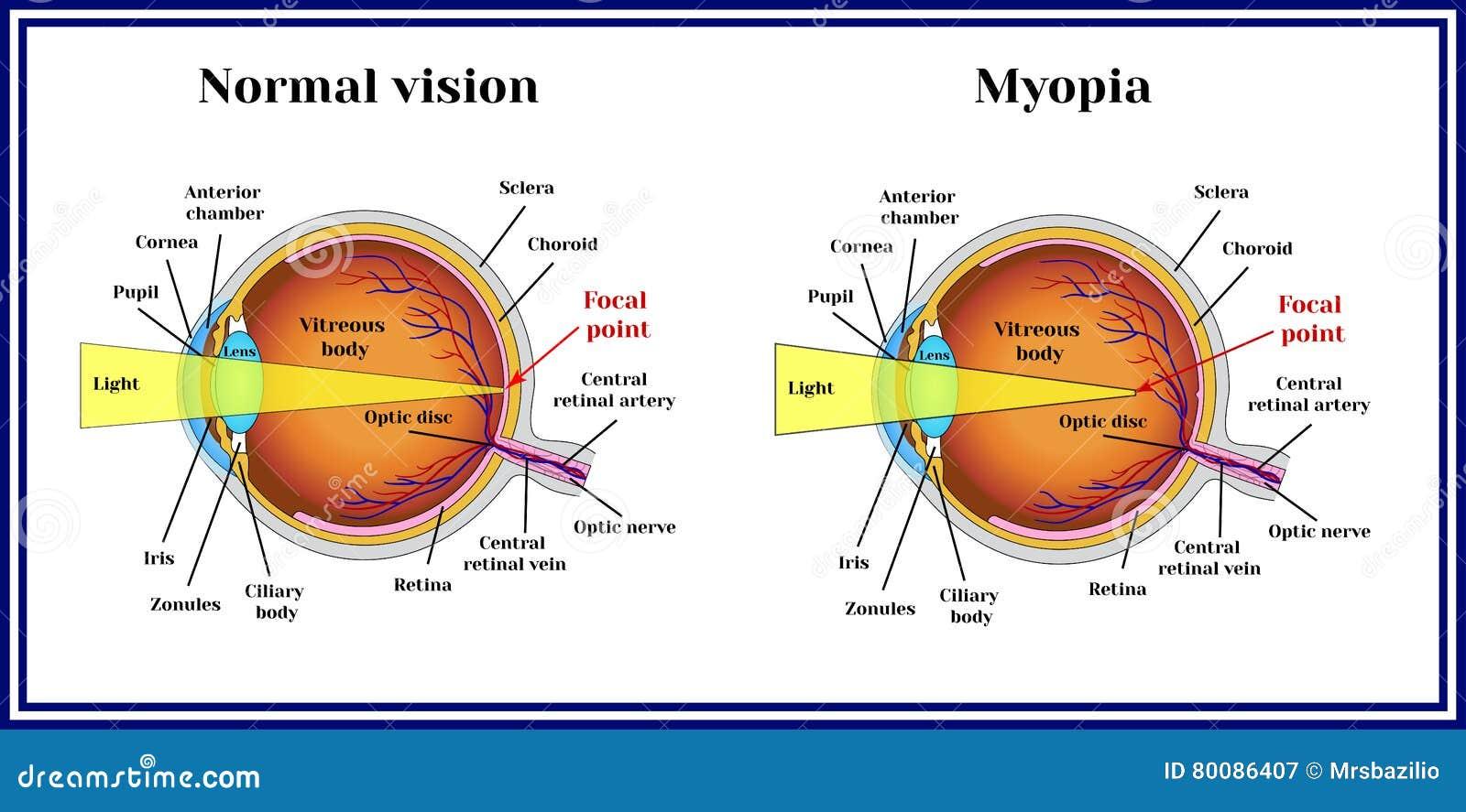 testlátási képességek a 8. látás hány százaléka