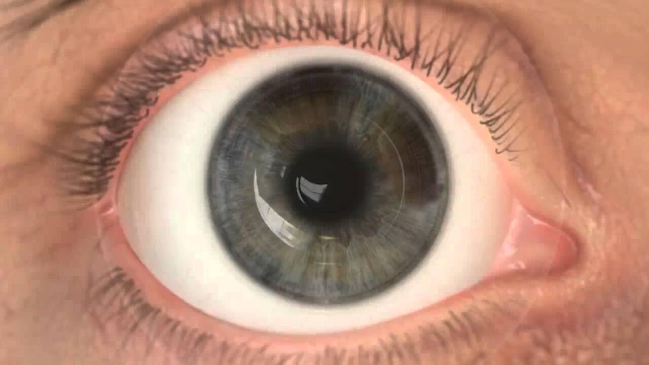 hiperopiás kezelés torna a szem számára)