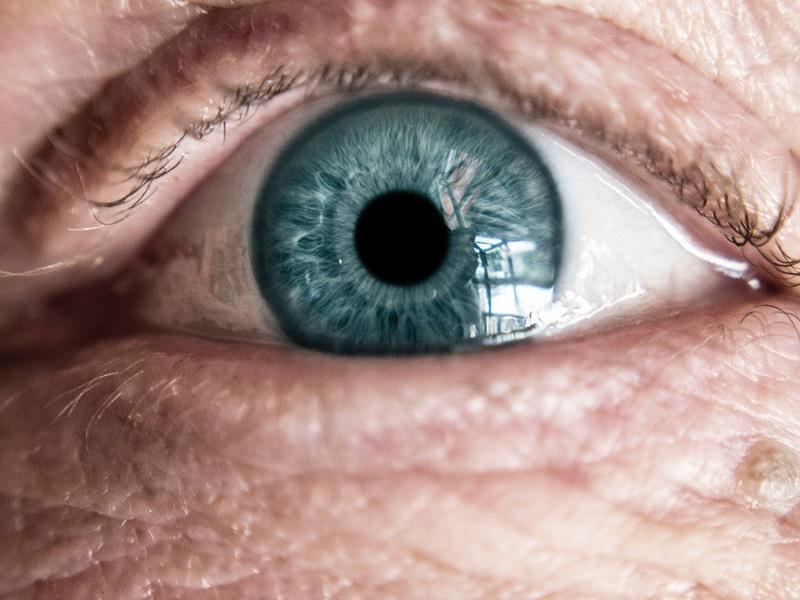 homályos látás 50 évesen