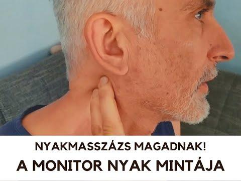 romlott a látás, fejfájás)