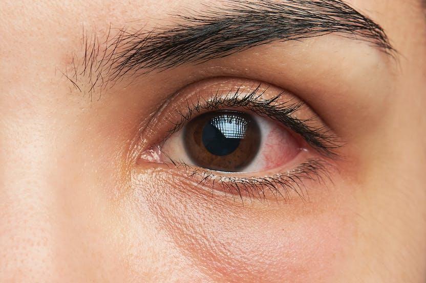 látás az egyik szem sötétebbnek lát)