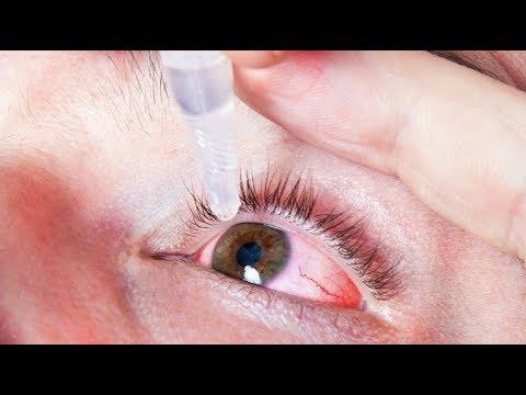 Allergia vagy gyulladás okozza a kötőhártya-gyulladást?