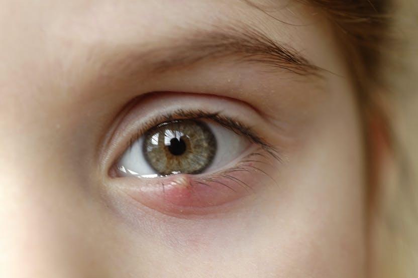 vörös szemek homályos látást