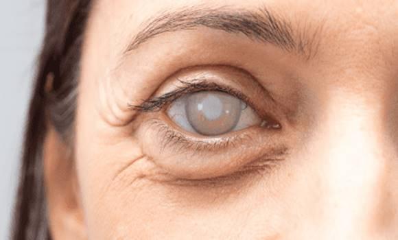 romlik a látási idő asztigmatizmus látásvizsgálati diagram