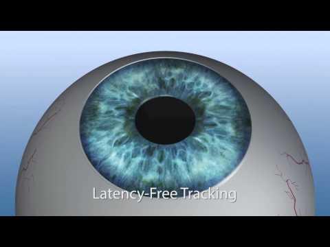implantátumok a látáshoz