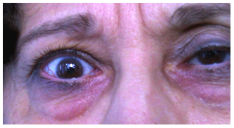 A száraz szem korunk betegsége | Csalázonataxi.hu