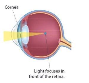 myopia és hyperopia különbség)