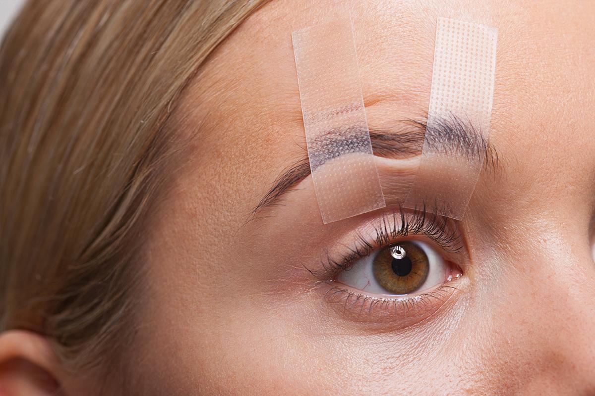 a szemhéj megereszkedése, hogyan befolyásolja a látást)