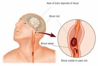 A mélyvénás trombózis tünetei és okai