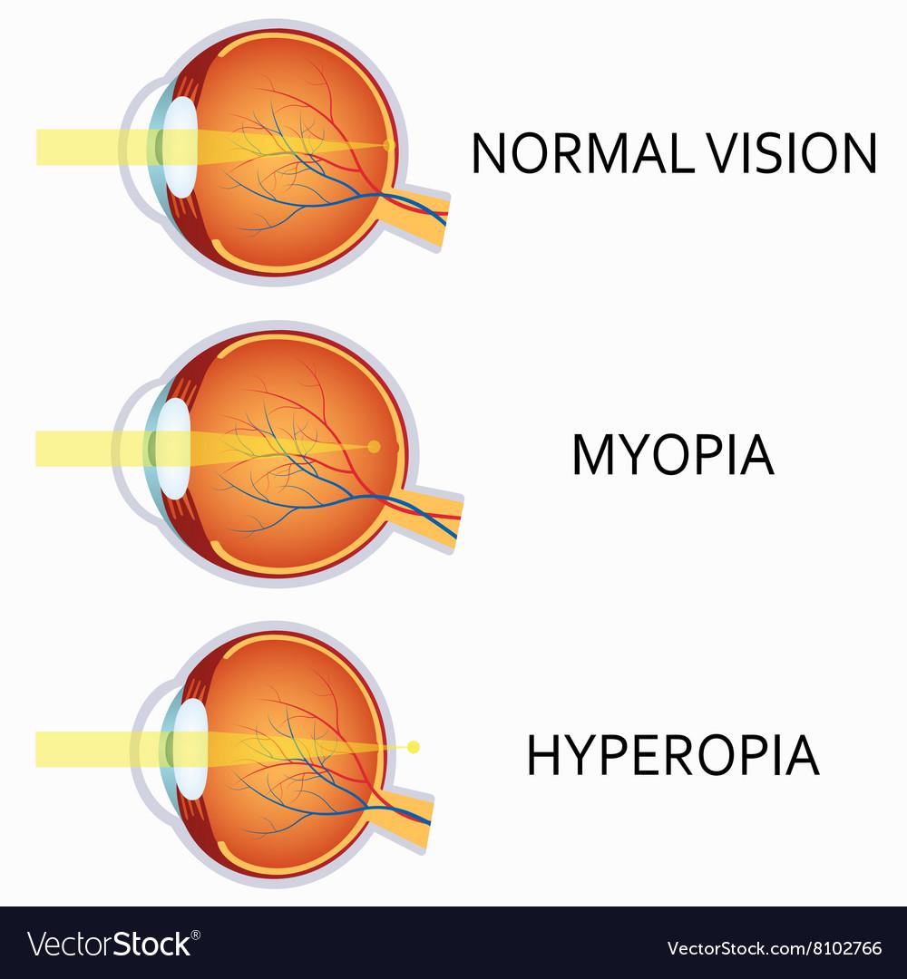 hyperopia myopia a)
