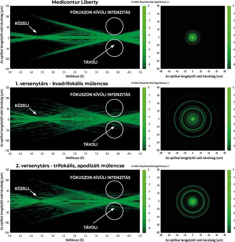 mit jelent a látás 0 05 az okklitális neuralgia rontja a látást