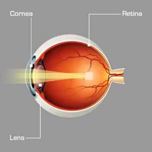 asztigmatizmus látásvizsgálati diagram csökkent látás kötőhártya-gyulladással
