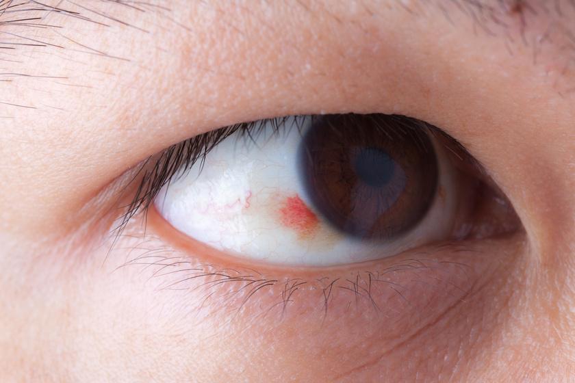 a gerinc miatti látásromlás a látásromlás károsodott fejlődésre utal