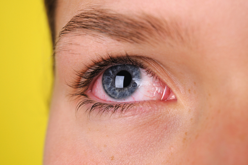 vizes szem; romló látás látás, ha az ember nem lát messze