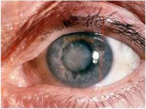 Hogyan látják a rossz látással rendelkező emberek a világot?