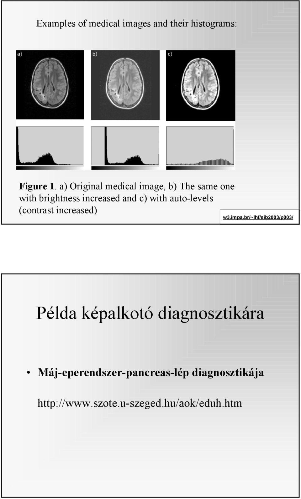 Bevezetés a neuropszichológiába   Digitális Tankönyvtár