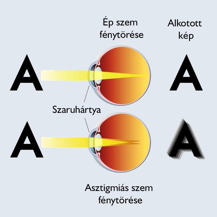 a látás fénytörése)