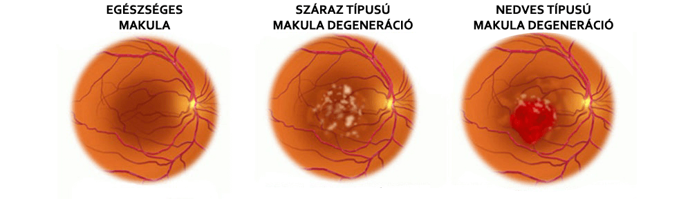a látás helyreállítása makula degeneráció során