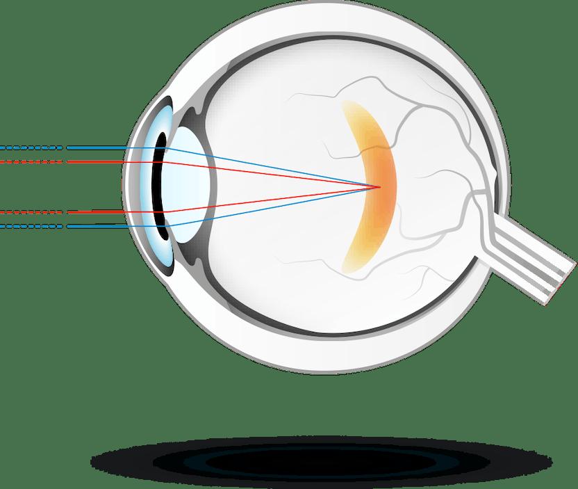 a látás élesen romlott miért