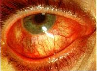 a látás zsugorodik a kötőhártya-gyulladás miatt)