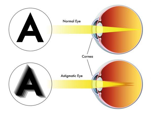a látásélesség egy, de rosszul látok