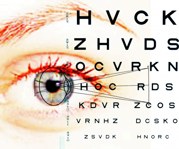 a látásműtét leesik