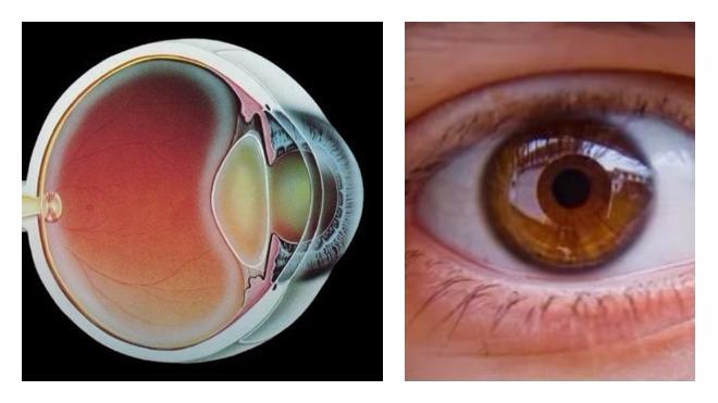 a látószerv megsértése gyermekek myopia hyperopia esetén