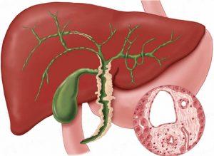 Mérsékelt külső hydrocephalus: tünetek, okok, kezelés