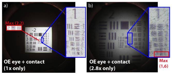technikák és gyakorlatok a látás javítására asztalméret a látáshoz